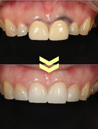 歯茎の黒ずみなど審美治療