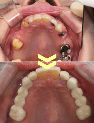 ひどい虫歯の治療
