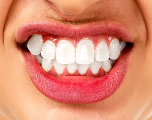 インプラントやブリッジ以外に歯を作る治療法