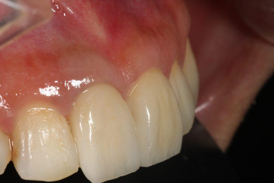 歯茎の色が黒い芸能人はなぜ黒いの?その原因と対策について