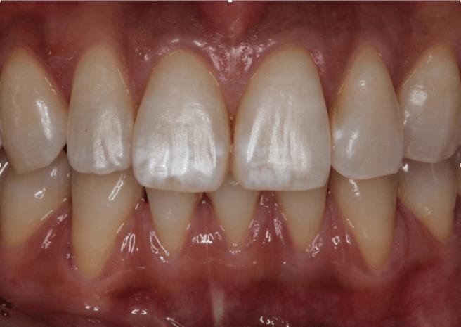 前歯についた白濁やシミ、斑点、ホワイトスポットがどうしても取れない時に知っておきたい治療法