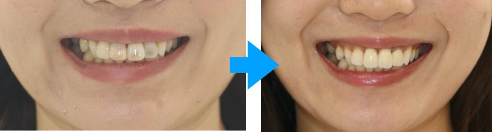 前歯の虫歯が黒い、きれいな歯を作りたい場合に知っておきたいこと