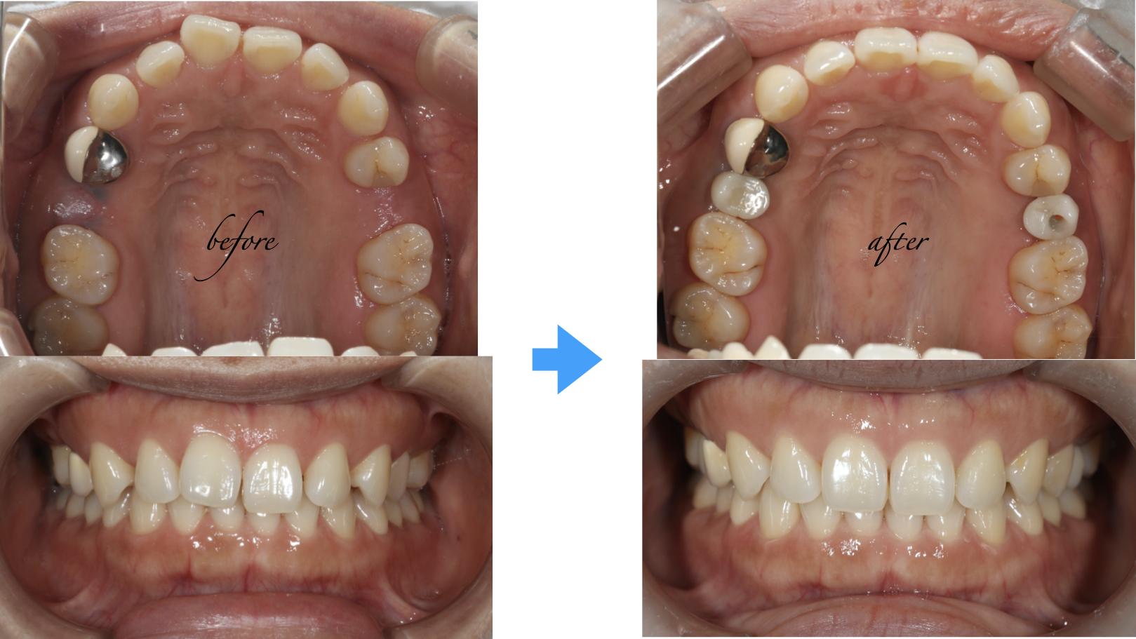すきっ歯をインビザライン とインプラントで治療した症例